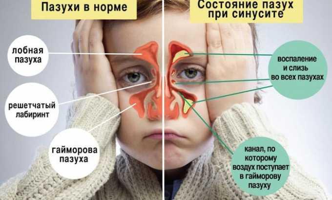 Вобензим применяется и в лечении заболеваний дыхательной системы, например, синусита