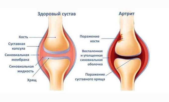 Рассматриваемое лекарство может назначаться при артрите