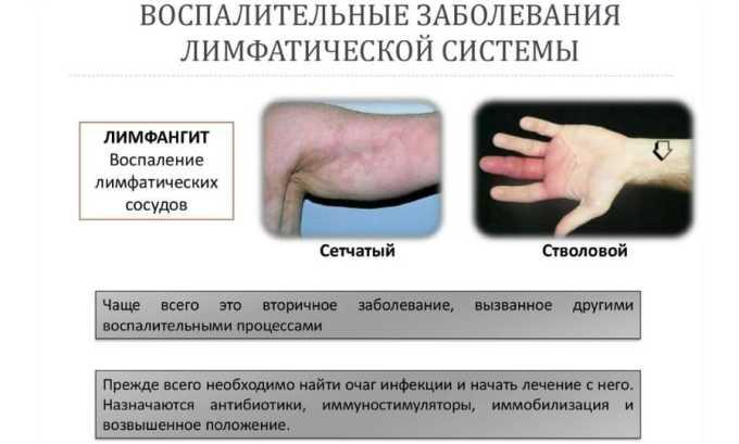Противоопухолевый антибиотик назначается в таких случаях, как лимфогранулематоз (рак лимфатической системы)