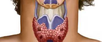 Чем опасна гипоплазия щитовидной железы у детей и взрослых?