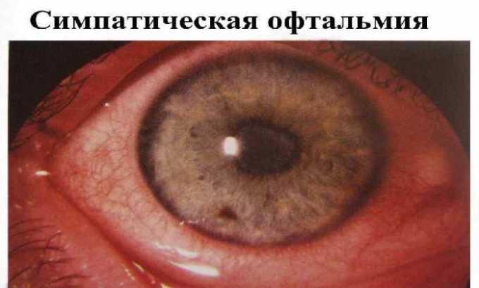 Препарат используется при симпатической офтальмии