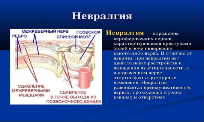 Кетонал назначают при невралгии