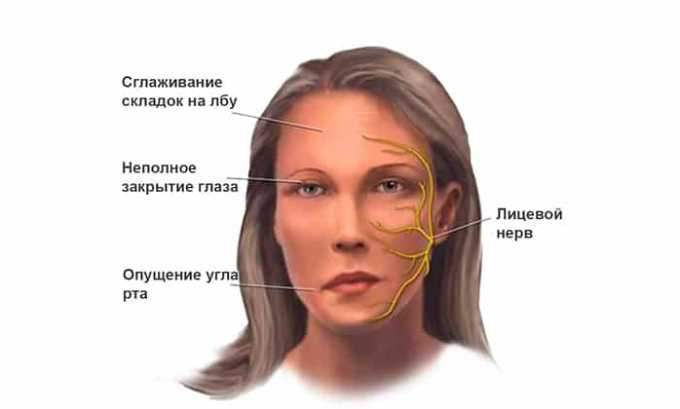 Препарат нужно с особой осторожностью принимать пациентам, страдающим гипотериозом