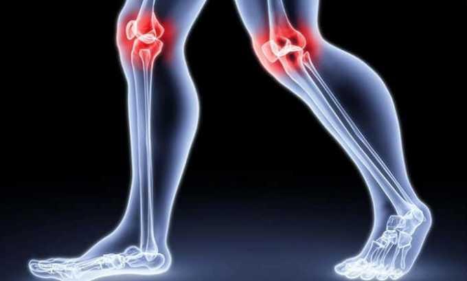 Дипроспан и Кеналог назначают при артрите и других болезнях опорно-двигательного аппарата