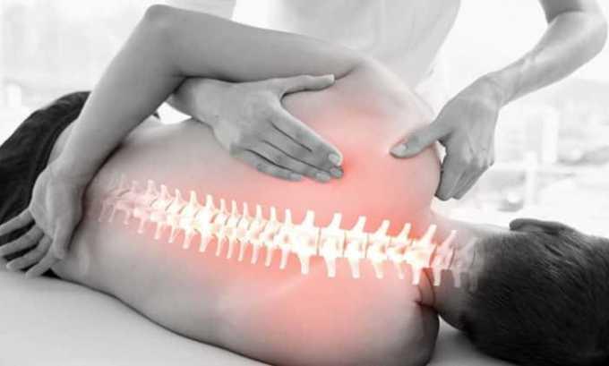НПВП выписывается пациентам с болями в области позвоночного столба