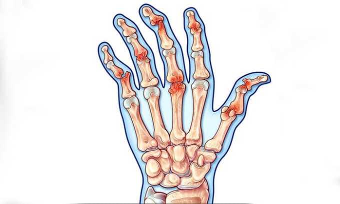 Внутримышечное введение лекарства оказывается эффективным в лечении псориатического артрита