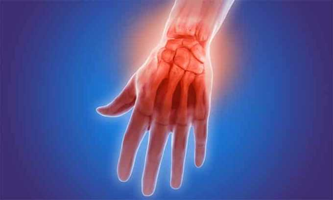 Медикамент применяется при артритах различной этиологии