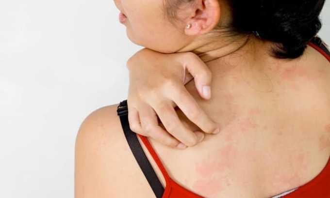 Могут проявиться аллергические реакции в виде зуда