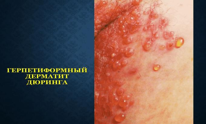 Препарат нельзя принимать при дерматите Дюринга