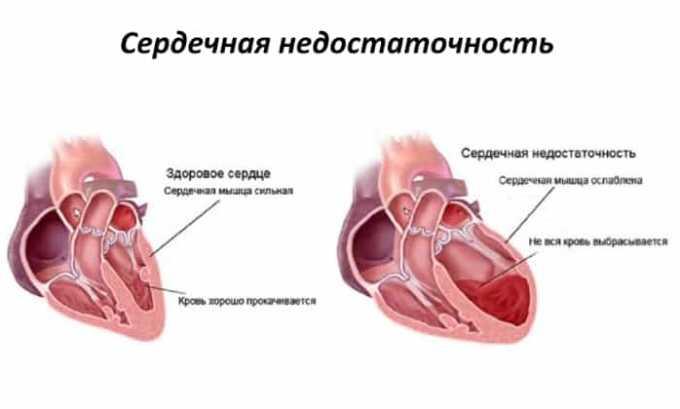 Препарат применяется при сердечной недостаточности