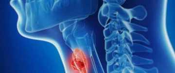 Что такое хронический аутоиммунный тиреоидит?