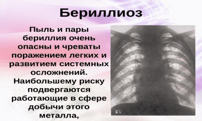Препарат используется при бериллиозе