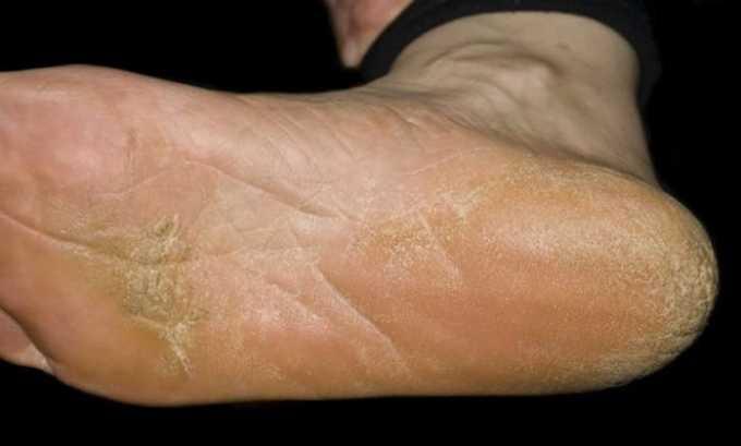 Противопоказанием к применению препарата Полькортолон ТС является грибковое поражение кожного покрова