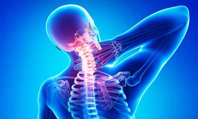 Состав рекомендуется использовать при остеохондрозе