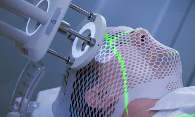 Применение лучевой терапии при раковых образованиях органов, находящихся в области шеи - причина образования гипотиреоза