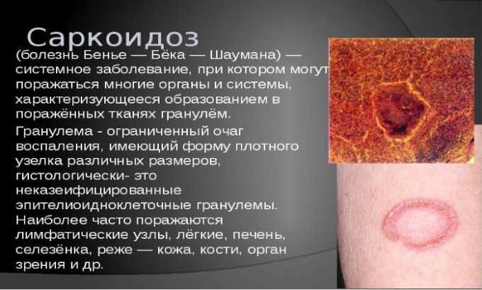 Препарат используется при скаркоидозе