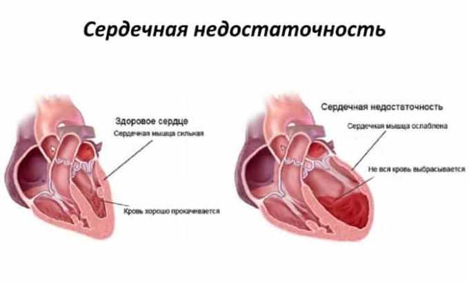 Эгилок противопоказан при декомпенсированной сердечной недостаточности