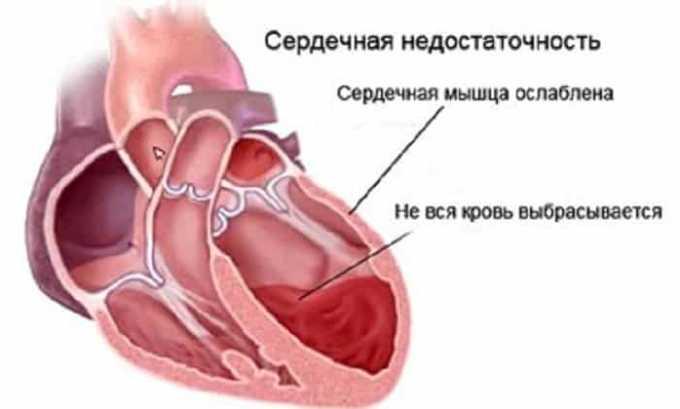 Пропранолол не назначают при наличии некомпенсированной сердечной недостаточности
