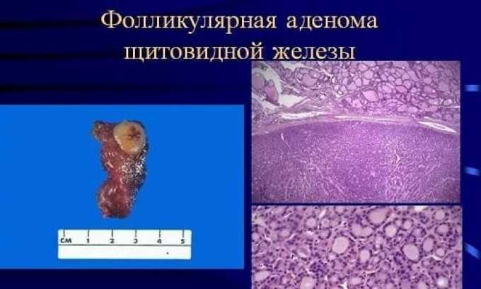Форма и размеры аденомы щитовидной железы