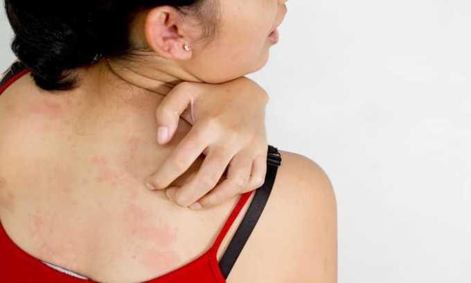 При приеме таблеток валерианы может возникнуть аллергическая реакция