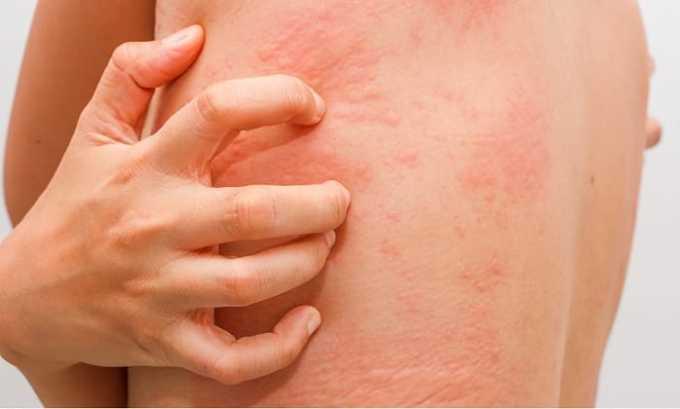 Во время терапии возможно появление различных видов сыпи