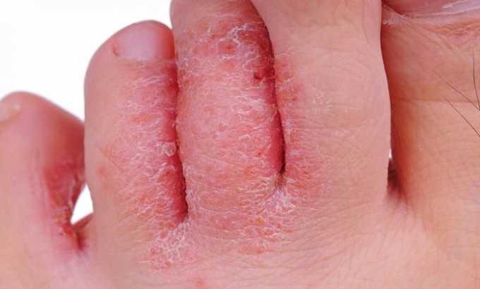 Шелушение и сухость кожи - побочное детстве препарата Полькортолон