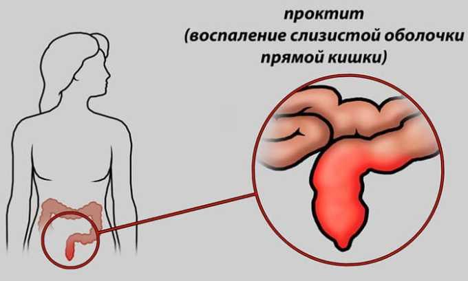 Как дополнительное лечение, препарат рекомендован при проктите