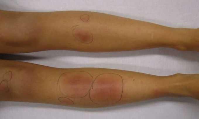 Поражение периартикулярной и соединительной тканей подлежит лечению Вольтарен мазью