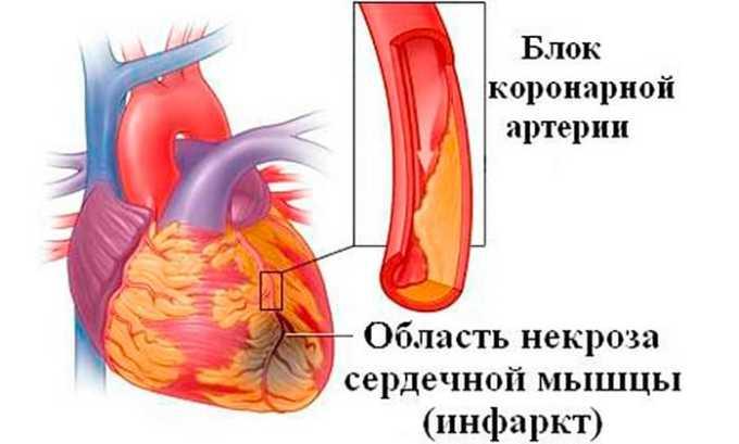 Лекарственное средство применяют в профилактике и лечении острого инфаркта миокарда