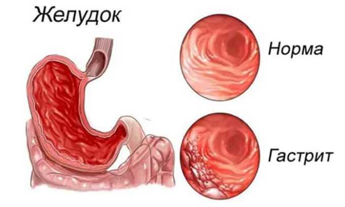 Препарат Диклофенак может привести к гастриту