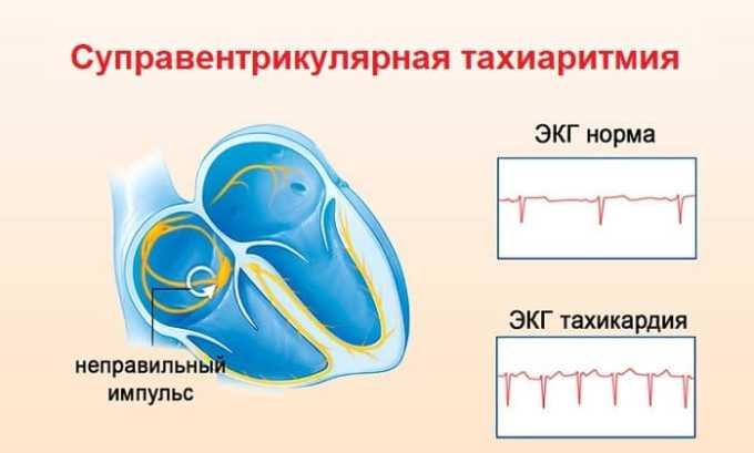 Лекарство применяют при суправентрикулярной тахиаритмии