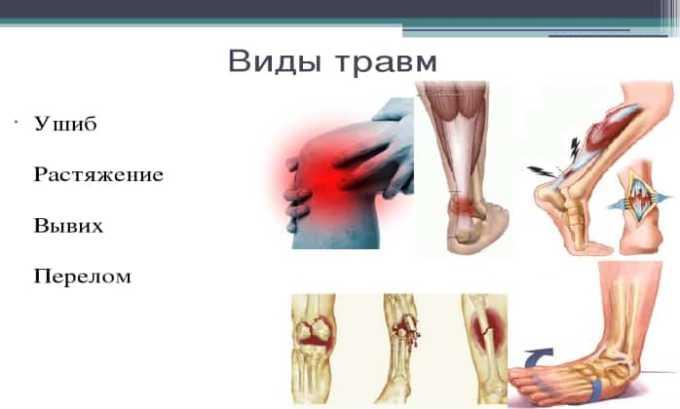 Диклофенак применяют для лечения травм, растяжений