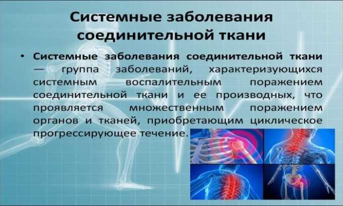 Лекарственное средство назначают при общих заболеваниях соединительной ткани