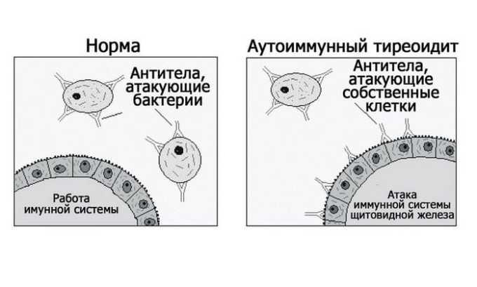 Аутоиммунный тиреоидит - причина развития гипотиреоза