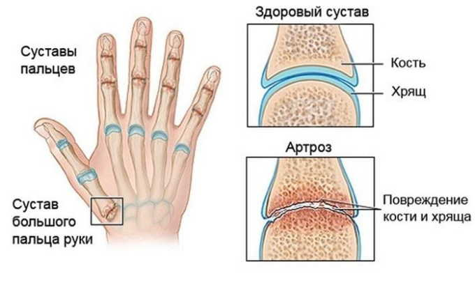 Показания для принятия лекарственного средства боли в суставах, хрящах или связках при остеоартрозе