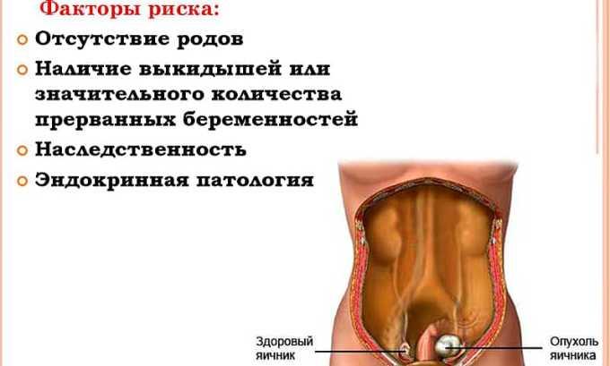 Препарат используется при гормонально активных опухолях яичников
