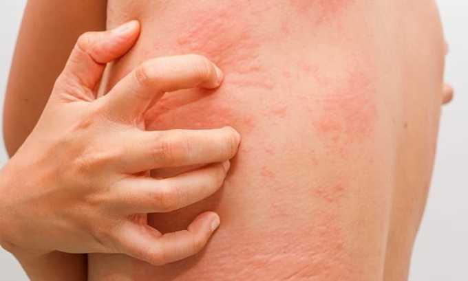 Препарат помогает устранить дерматиты