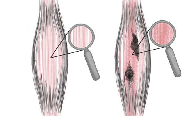 Хорошо помогает Диклофенак-Тева гель при растяжении мышц