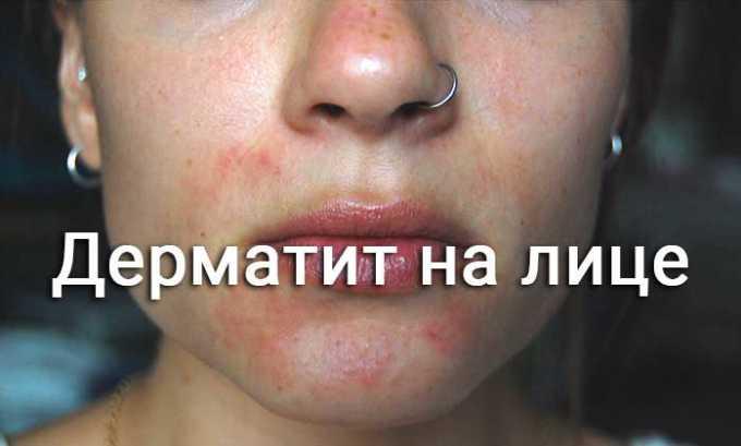 В редких случаях при терапии Диклофенак Акри может развиться дерматит