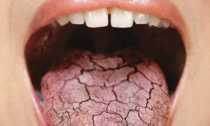 От приема препарата может быть побочное действие в виде сухости во рту