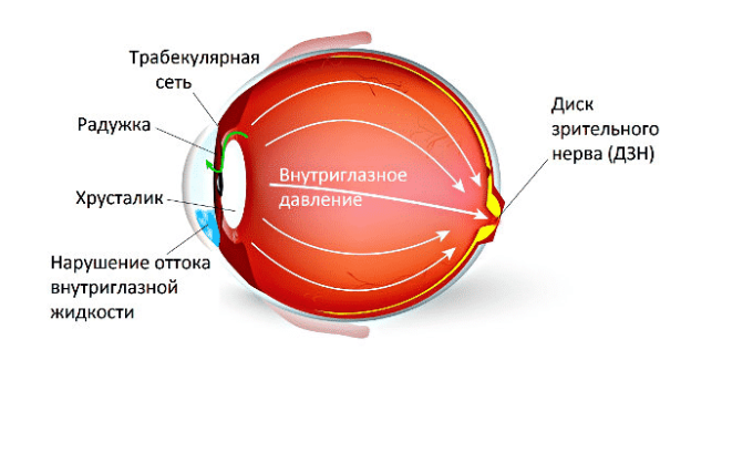 При длительном использовании Дексаметазона может увеличиться внутриглазное давление