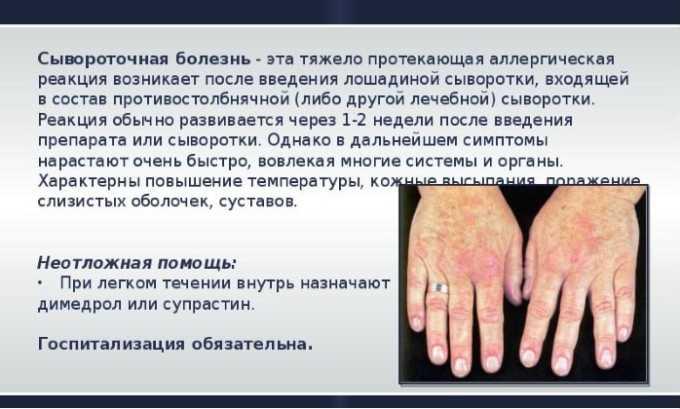 Препарат используют при сывороточной болезни