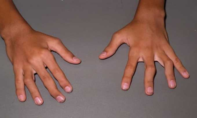 Кетонал назначают для лечения артрита