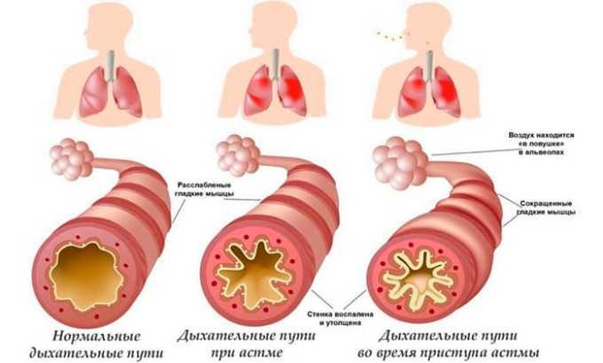 Препарат вызывает побочное явление в виде бронхоспазма