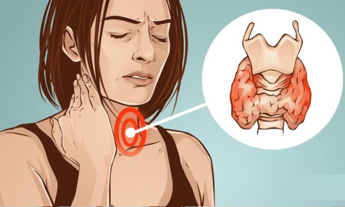 При болезни Грейвса происходит увеличение щитовидной железы, из-за которого ощущается боль и дискомфорт при глотании