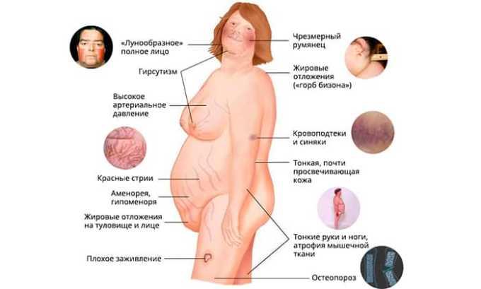 Запрещается применять гидрокортизон в случаях повышенной концентрации гормонов надпочечников в крови (синдром Иценко)