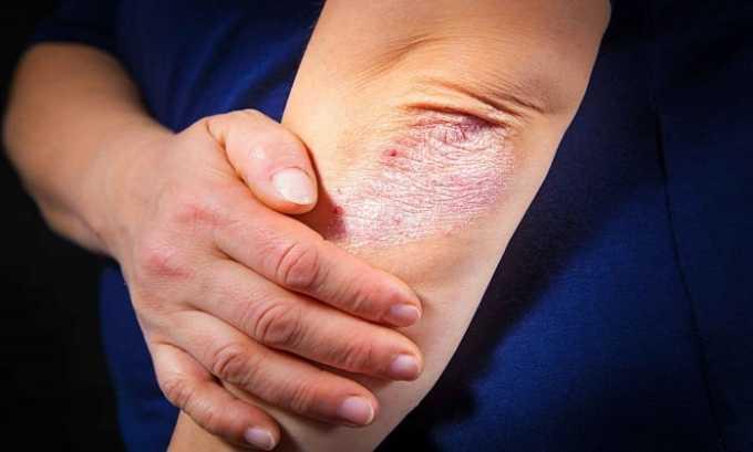 Витамин необходим для лечения псориаза