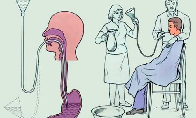 Лечением состояния передозировки является выполнение в условиях стационара промывания желудка