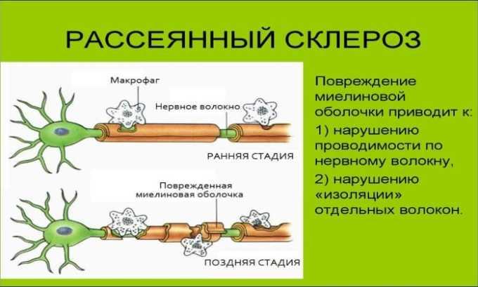 Препарат используется при остром периоде рассеянного склероза