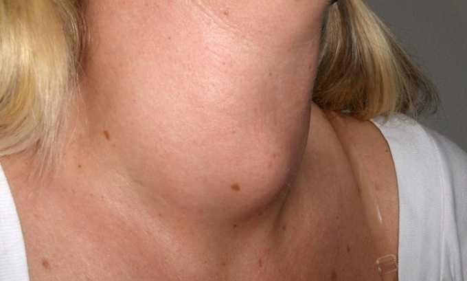 Увеличение щитовидной железы у беременной при тиреотоксикозе